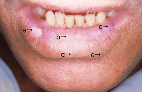 Queilitis actinica