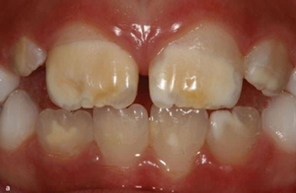 Resultado de imagen de hipoplasia del esmalte