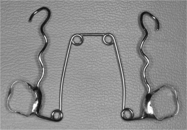 Quad helix vs placa removible con tornillo de expansi n for W de porter ortopedia