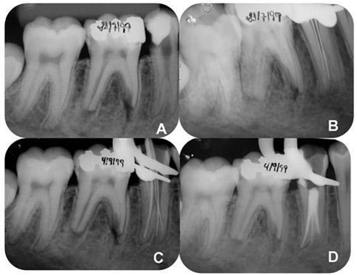 Estudio de las variaciones anatómicas de los premolares: reporte de ...