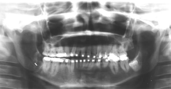Fractura de Ángulo Mandibular durante la exodoncia de tercer molar ...
