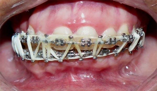 Fractura de Ángulo Mandibular durante la exodoncia de tercer